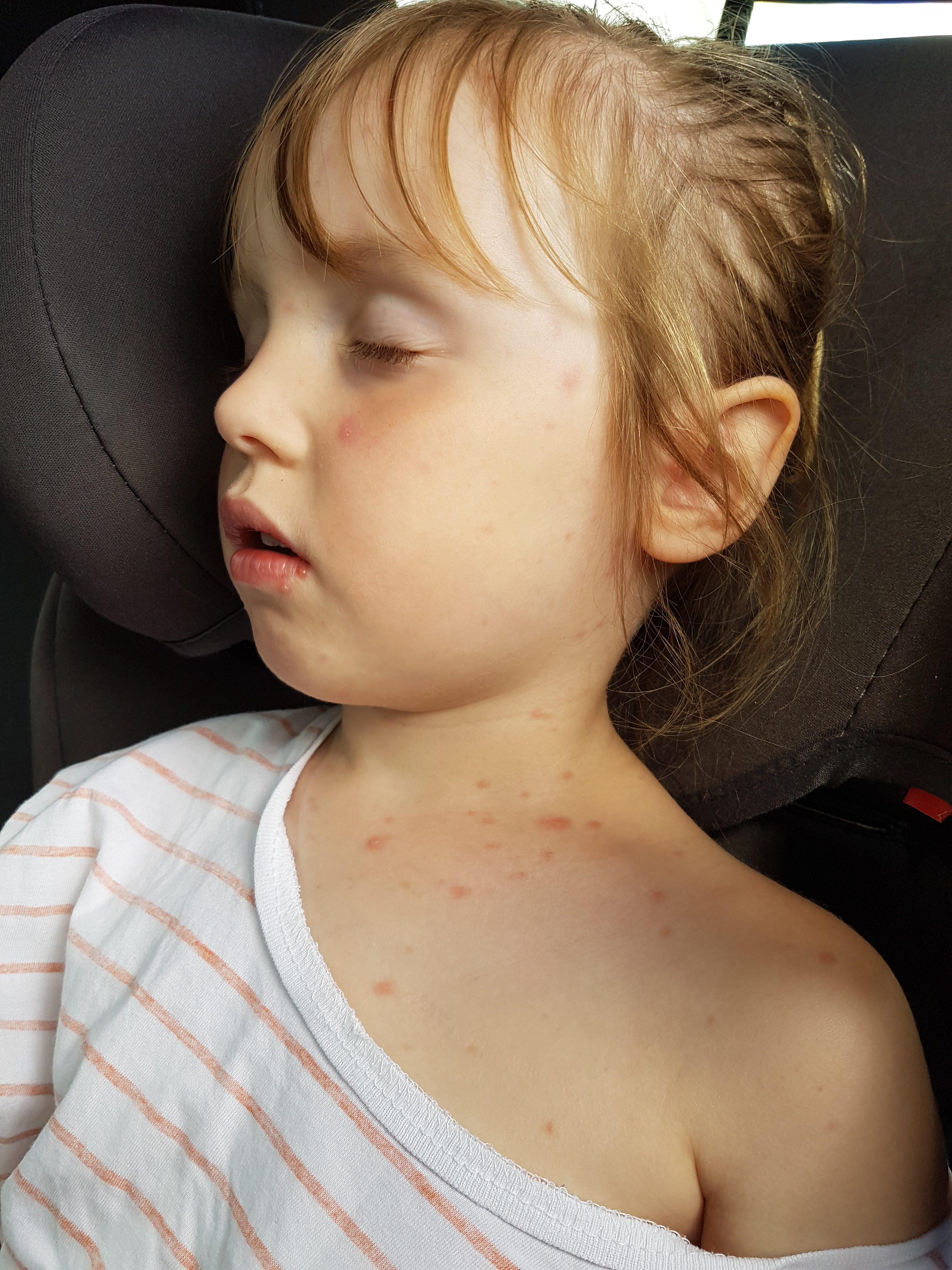 Emily Chicken pox
