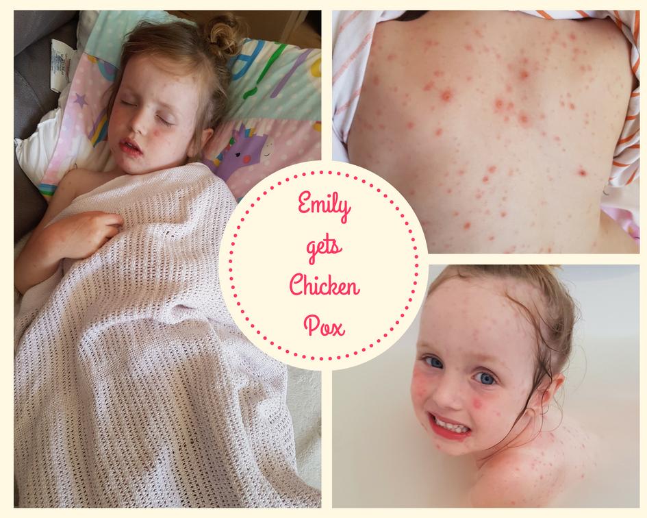 Chicken Pox -Emily's turn